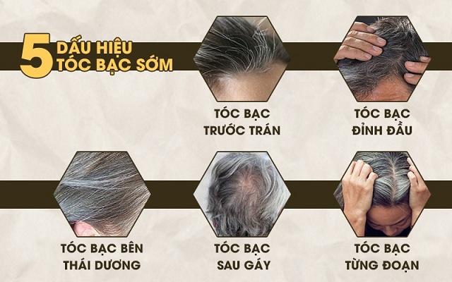 """Bác sĩ - Lương y Bùi Thị Thu Hằng """"bật mí"""" cách loại bỏ tóc bạc sớm hiệu quả nhất"""