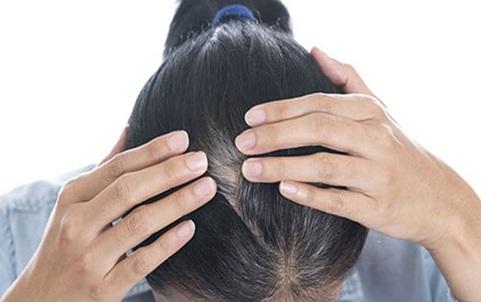 Nguyên nhân khiến tóc bạc sớm