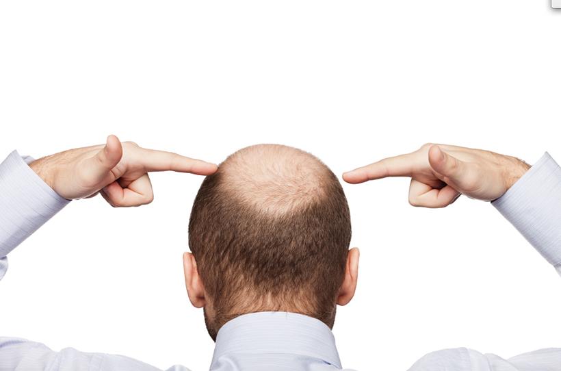 Lương y chia sẻ phương pháp chữa bệnh hói đầu do di truyền hiệu quả tức thì