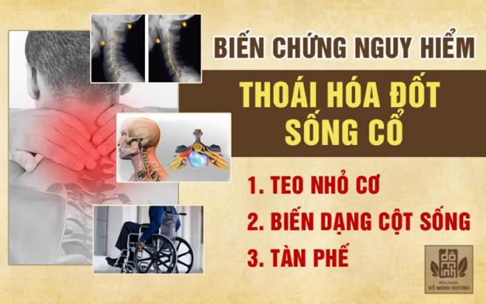 Chứng thoái hóa cột sống cổ mà nghệ sĩ Xuân Hinh mắc phải là căn bệnh nguy hiểm, cần sớm điều trị đúng cách