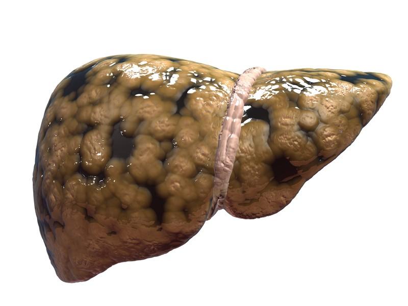 HepaB Extra giải pháp cho bệnh gan nhiễm mỡ