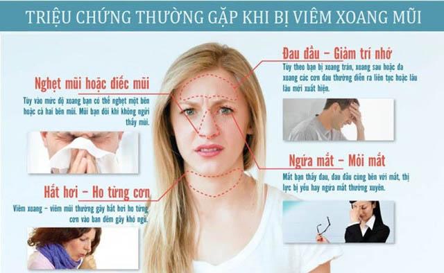 Các triệu chứng viêm xoang thường gặp