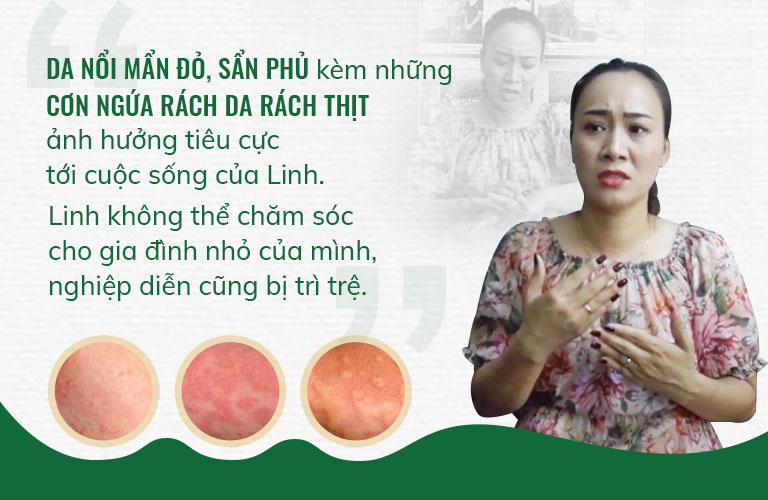 Những cơn ngứa ngáy rách da rách thịt ảnh hưởng rất nhiều tới cuộc sống của chị Linh