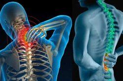 Gai cột sống là tình trạng hình thành nên các phần xương ở phía ngoài và hai bên cột sống