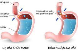 Theo thống kê, có đến 80% dân số mắc căn bệnh trào ngược dạ dày