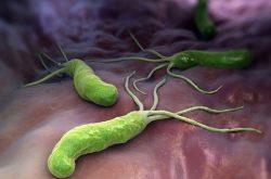 Vi khuẩn HP là gì? Vi khuẩn này có tên đầy đủ là Helicobacter Pylori