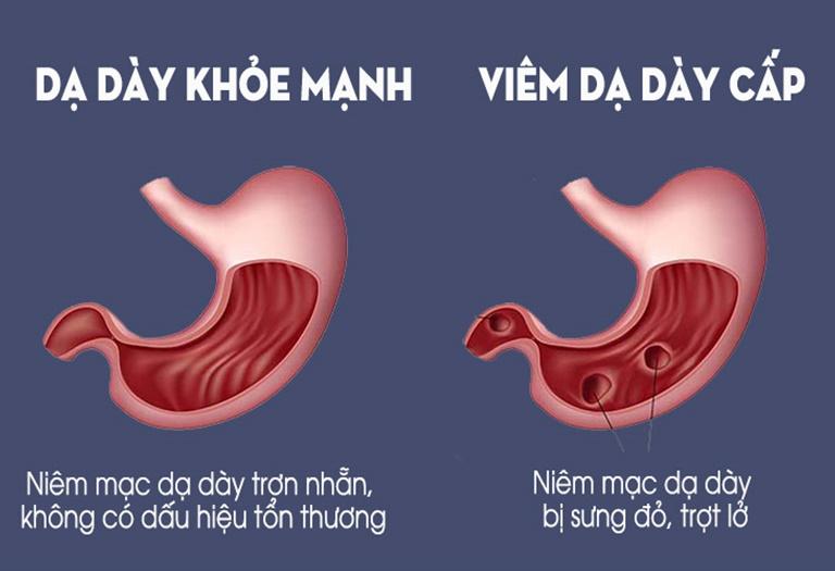 Viêm dạ dày là căn bệnh rất phổ biến ở nước ta