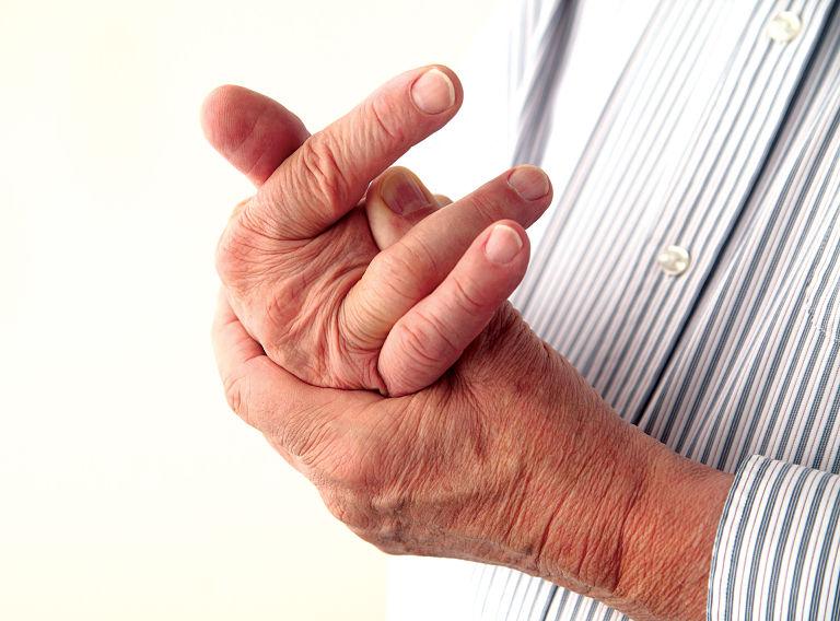 Bệnh gây ra triệu chứng biến dạng, sưng, nóng khớp