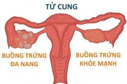 Hội chứng buồng trứng đa nang thường gặp ở đối tượng phụ nữ trong độ tuổi sinh sản