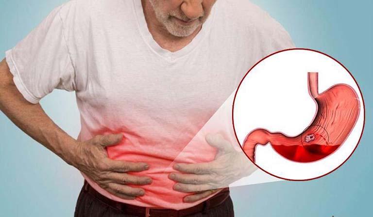 Nghệ đen sẽ làm tăng tình trạng bị xuất huyết dạ dày