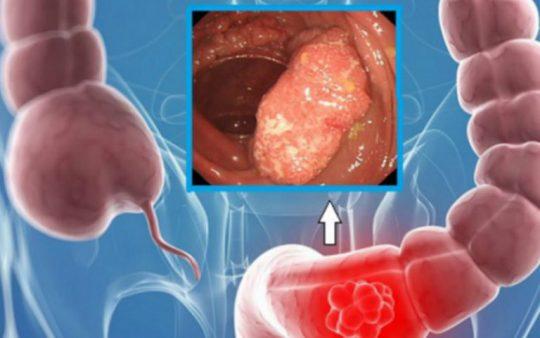 Polyp đại tràng có thể chuyển biến thành ung thư