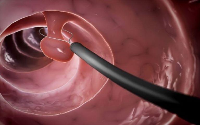 Thủ thuật nội soi chẩn đoán polyp đại tràng