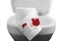 Trĩ chảy máu là tình trạng thường gặp ở người bệnh trĩ