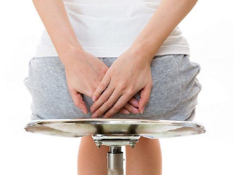 Trĩ ngoại tắc mạch là biến chứng thường gặp ở người bệnh trĩ ngoại