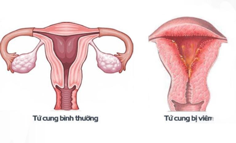 Viêm nội mạc tử cung là nguyên nhân khiến âm đạo chảy máu