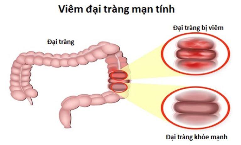 Viêm đại tràng mãn tính là một loại bệnh của hệ đường ruột