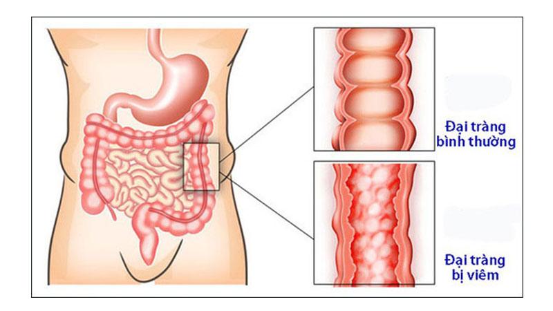 Viêm đại tràng là một bệnh lý phổ biến tại đường tiêu hóa