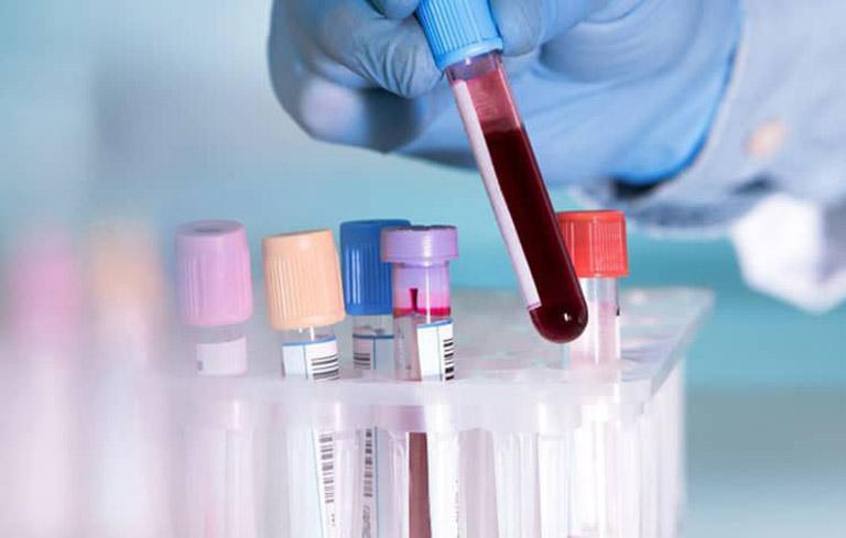 Bước đầu tiên chẩn đoán bệnh viêm loét dạ dày là xét nghiệm phân và máu