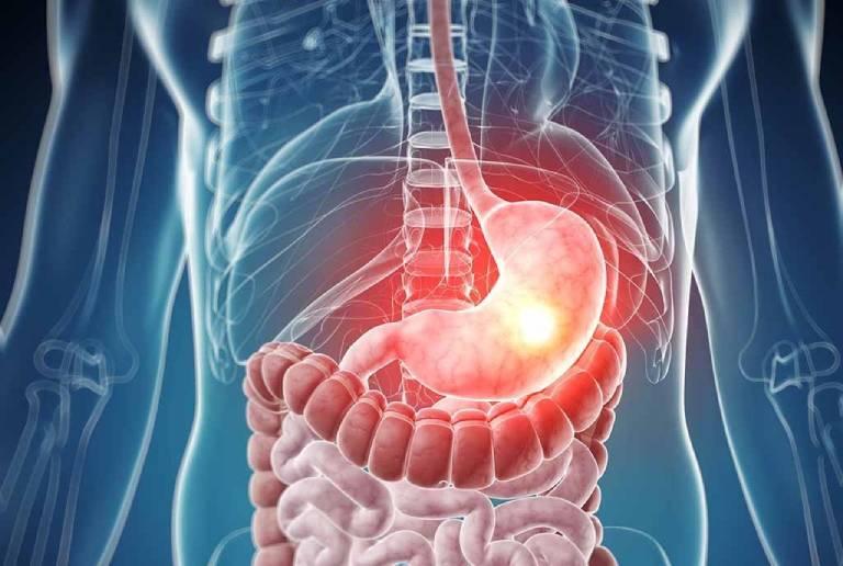 Viêm loét dạ dầy là tình trạng tổn thương ở lớp niêm mạc dạ dày do sự bào mòn của axit dịch vị