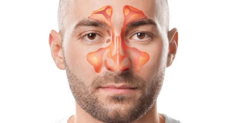Nếu để bệnh lâu ngày có thể hình thành biến chứng thành viêm xoang