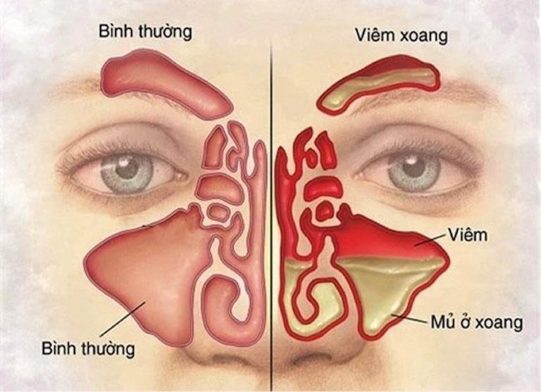 Viêm xoang là tình trạng các hốc xoang bị ứ đọng dịch nhầy và mủ