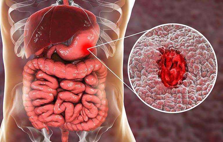 Xuất huyết dạ dày là căn bệnh về đường tiêu hóa có thể gây tử vong