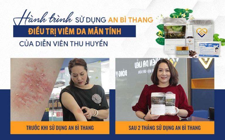 """Chữa viêm da cơ địa thành công, nghệ sĩ Thu Huyền là """"cầu nối"""" đưa diễn viên Vân Anh đến với Trung tâm Da liễu Đông y Việt Nam"""