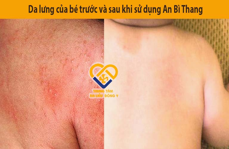 Da lưng bé An trước và sau khi điều trị viêm da cơ địa với bài thuốc An Bì Thang